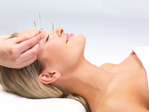 acupuntura facial vigo