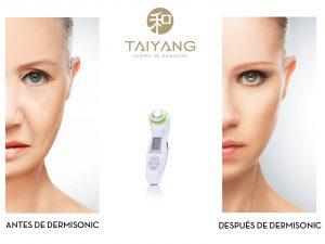 tratamiento dermisonic taiyang estetica vigo