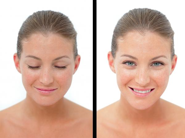 antes y después de tratamiento antipolución