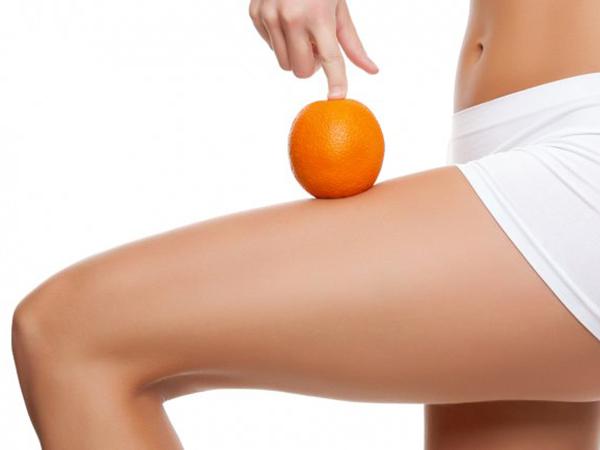 piel naranja eliminar centro estetica vigo