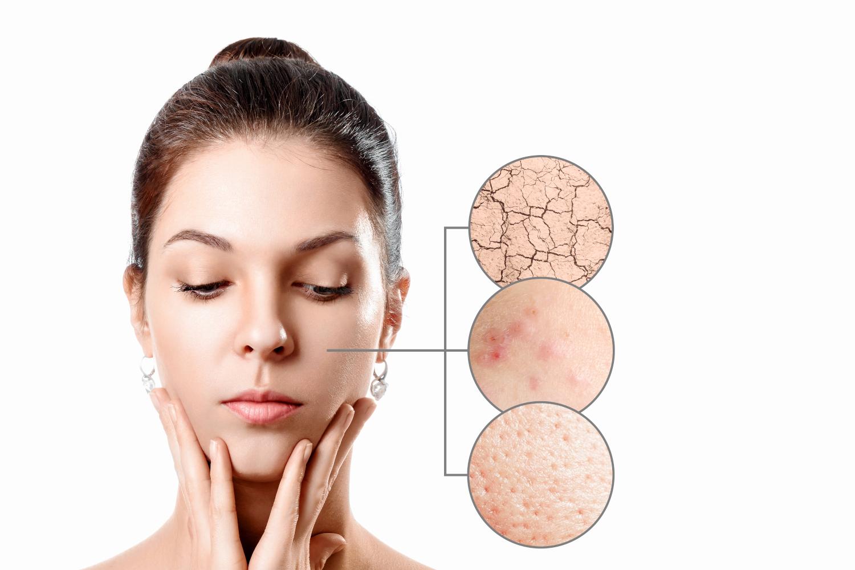 Tratamiento antiedad con acido hialuronico